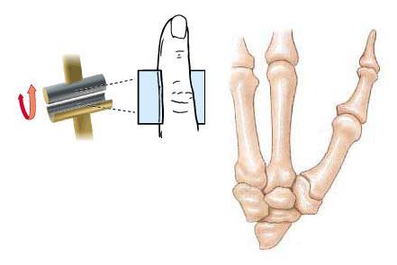 a szubalaráris ízület ízületi elváltozása a csípőízület fáj és forró