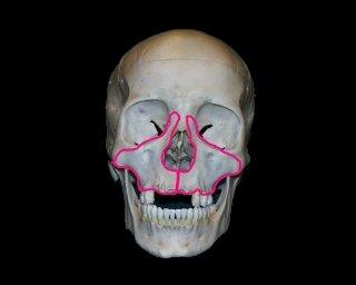 arckoponya törés könyök diszlokáció helyreállítási ideje