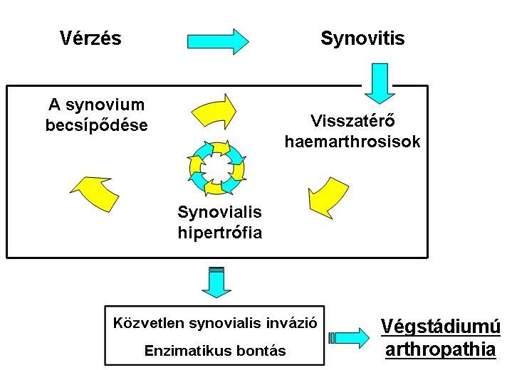 synovitis bokakezelés áttekintése